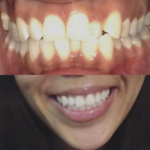 candid clear aligner review
