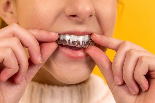 invisible teeth aligner on teeth