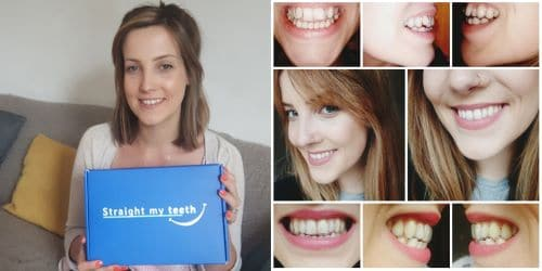 straight my teeth clear aligner review